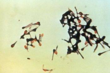 Clostridim tetani